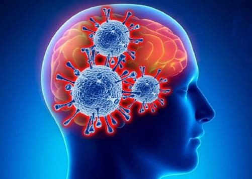 Можно ли делать прививку от COVID-19 после инсульта?