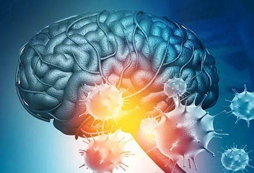 Можно ли прививаться от COVID-19 пациентам с эпилепсией?